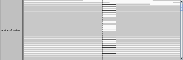 IGV view of sequencing reads in MSH6 gene in the exact location as above.  The -e 5 -E 1 settings which allow for deletions to map to the reference genome easier.  Notice compared to the default settings (12) there are